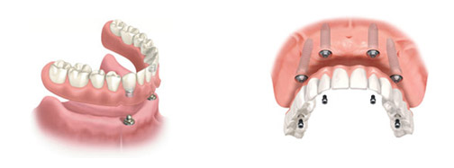 Dental Implant Dentures Aptos, Santa Cruz, Soquel, Capitola
