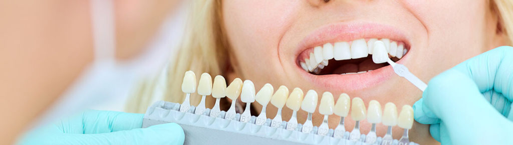 Purcelain Dental Veneers Aptos, Santa Cruz, Soquel, Capitola