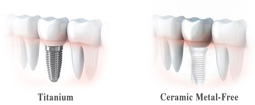 Dental Implants, Ceramic Metal-Free Implants Aptos, Santa Cruz, Soquel, Capitola